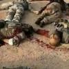 Yemen Hizbullahından Suud Güçlerine Ağır Darbe: 100 Paralı Asker Gebertildi