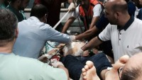 Kudüs'teki Çatışmalarda Filistinli Bir Genç Başından Ağır Yaralandı