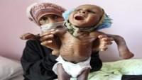 Yemen'de her 10 dakikada bir çocuk açlıktan ölüyor