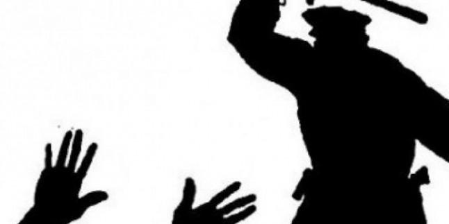 Bu Ülkede Padişahı(!) Protesto Yasak Kalkışırsan Yersin Yumruğu…
