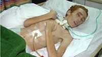 Temmuz Savaşında Yaralanan Filistinlilerden Biri Daha Şehadet Makamına Ulaştı…
