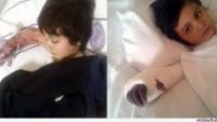 Yozgat'ta Hastaneye Karın Ağrısı Şikayetiyle Giden 4 Yaşındaki Çocuk Kangren Oldu…