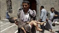 Foto: IŞİD'e Bağlı Unsurların Yemen'de Camilere Düzenlediği Terör Saldırısından Görüntüler.