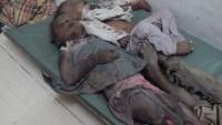Allah Sizi Kahretsin Siyonist Köpekler! Foto: Suud'un Yemen'de Vahşice, Şerefsizce Katlettiği Mazlumlar…