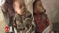 Foto: Suud Uçaklarının Sa'da Kentini Bombardımanında Şehid Olan 2 Bebek