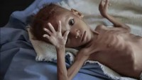 Yemen Sağlık Bakanlığı: Yemenli 71 bin hasta kuşatma yüzünden hayatını kaybetti