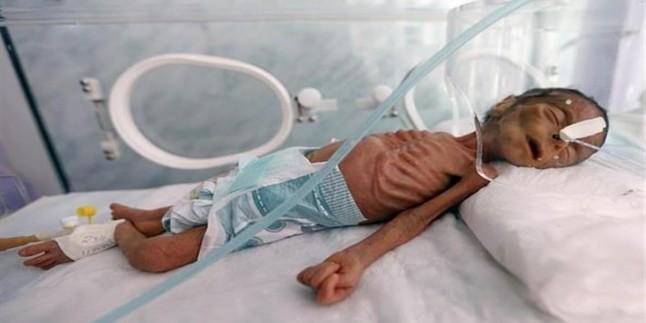 Aşağılık Suudi Rejimi'nin Yemenli Çocuklara Ödettiği Bedel