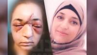 İşgal Güçleri Çocuğunu Savunan Filistinli Kadının Hayatını Cehenneme Çevirdi