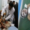 Siyonist Suudi Rejimi Yemen Halkına Yönelik Saldırısını Sürdürüyor: 37 Şehid