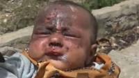 Savaş Yemenli çocuklar üzerinde önemli tahribat bırakıyor