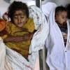 Yemenli Çocuklara Yardım Zarureti