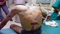 Bahreyn zindanlarında tutuklulara yönelik ağır işkence sürüyor