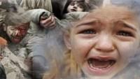 UNICEF: Yemen'de 10 milyon çocuk acil yardıma muhtaç