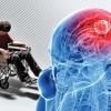 İranlı uzman MS hastalığını tedavi etme yolunu buldu