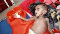 Kızılhaç uyardı: Yemen açlıktan ölmek üzere