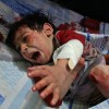 UNICEF'ten Suriye'de çocuk ölüm uyarısı