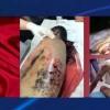 Cevad Firuz: Bahreyn zindanlarında organizeli işkenceler uygulanıyor