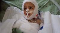 Kendine gelen Filistinli çocuk: Niçin Yakıldım?
