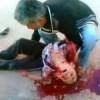 Foto: IŞİD Teröristleri Ayn el Arap'ın Güneyinde Katliam Yaptı