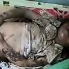 Suud Rejimi , Yemen Halkına Karşı Yasak Silahlardan Yararlanıyor