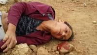 Siyonist İsrailli General: Askerler Çocukları Kasıtlı Olarak Hedef Alıyor 