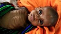 UNICEF: 5 yaş altı 69 milyon çocuk ölebilir