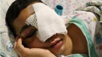 Kudüs Halkından 12 Kişi Siyonist İsrail Askerlerinin Silahıyla Gözlerini Kaybetti