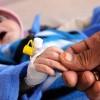 Suud Koalisyonun İşgali Ve Ambargosunun Neden Olduğu Salgın Hastalıktan 91 Kişi Hayatını Kaybetti