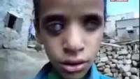 Video: Burası Suudi Amerika ve onun destekçisi olan Türkiye yönetiminin 2015'in Mart ayından beri sivil halkı bombalarla katlettiği Yemen…..