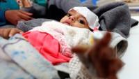 Arabistan ve ABD Yemen halkını kolera virüsü ile öldürüyor