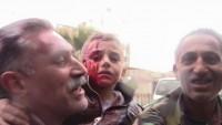 Foto: Teröristler Suriye'yi Kana Buladı