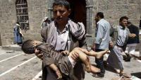 Suudi Amerika Ve Uşaklarına Bağlı Savaş Uçakları Yemen Halkını Yakıcı Bombalarla Vurdu