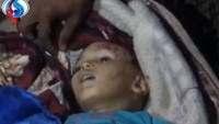 Siyonist Suudi Rejimi, Yemen Halkını Katlediyor: 30 Şehid, 54 Yaralı