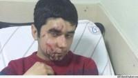 14 Yaşındaki Çocuk, Polisin Attığı Gaz Kapsülü İle Yüzünden Vuruldu…