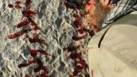 """Şehit Düşen Suriye Askerinin Kanıyla Yazdığı Son Sözleri:"""" Başımız Dik Şehit Düştük"""""""