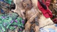 Yemen'de 12 milyonun üzerinde insan yiyeceğe ulaşımda güçlük çekiyor