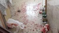 Gazze Direnişi Askalan Kasabasını Füzelerle Vurmaya Devam Ediyor: 1 Siyonist Ölü, 4 Siyonist'te Ağır Yaralı