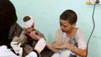 Yemen sağlık bakanlığı: Saldırgan koalisyon güçleri soykırım yapıyor