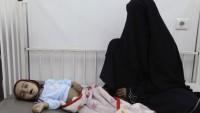 Milyonlarca Yemenli acil insani yardıma muhtaç