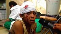 İran'dan Arabistan'ın Yemen'deki cinayetlerine sert tepki