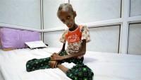 BM, Yemen'de kolera hastalığının yayılmasından endişeli