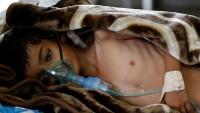 Yemen sağlık alt yapısı çökmüş durumda