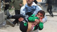 ABD saldırısında yine çok sayıda sivil öldü ve yaralandı