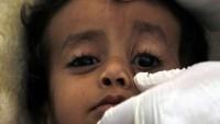 Yemen'de kolera can almaya devam ediyor