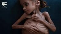 UNİCEF'ten Yemen konusunda uyarı