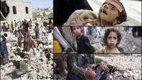BM: Yemen'in %80'i İnsani Yardıma Muhtaç