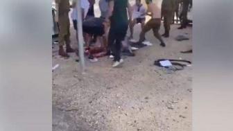 Gazze Direnişçilerin Vurduğu Nahil Uz Askeri Üssünde İkisi Ağır 5 Siyonist Asker Yaralandı