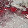 Şam Üniversitesine Yapılan Hain Saldırıda Bir Kız Öğrenci Şehit Oldu