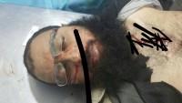 Cephetu Tahriri Suriye Teröristlerin Saha Komutanlarından Eba Turab El Mısrı İdlib'te Öldürüldü