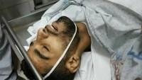 Kahraman Gazze Halkı Siyonistlerle Çatışıyor: 1 Şehid, 24 Yaralı